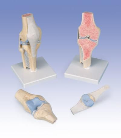 4589 - Sectional knee joint model