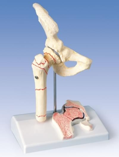 A88 - Femoral Fracture and Hip Osteoarthritis