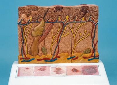J15 - Skin Cancer Model