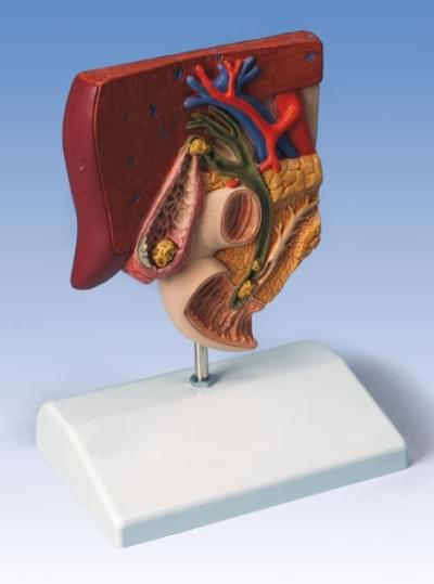 K26 - Gallstone Model