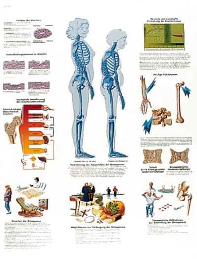 VR1121UU - Osteoporosis
