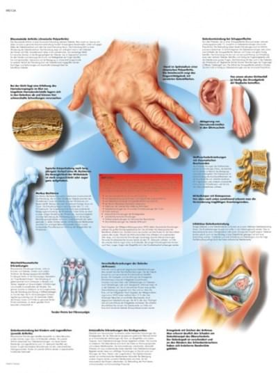 VR1124UU - Rheumatic Diseases