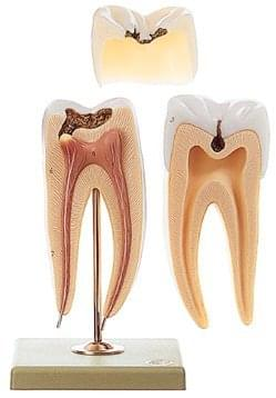 MJ16 - Molar Tooth with Caries