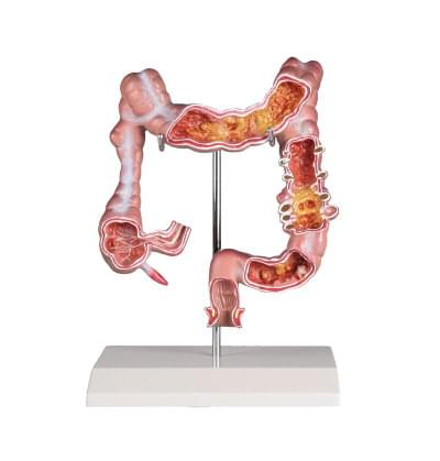 6090.25 - Colon Diseases