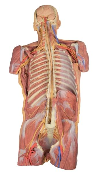 MP1410 - Posterior Body Wall / Ventral deep dissection